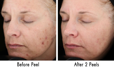 peels-before-after